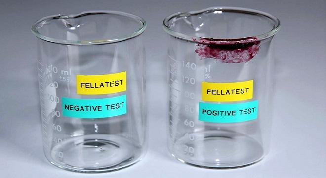 - Le-test-salivaire-FELLATEST-permet-désormais-de-détecter-les-fellations-extraconjugales-3